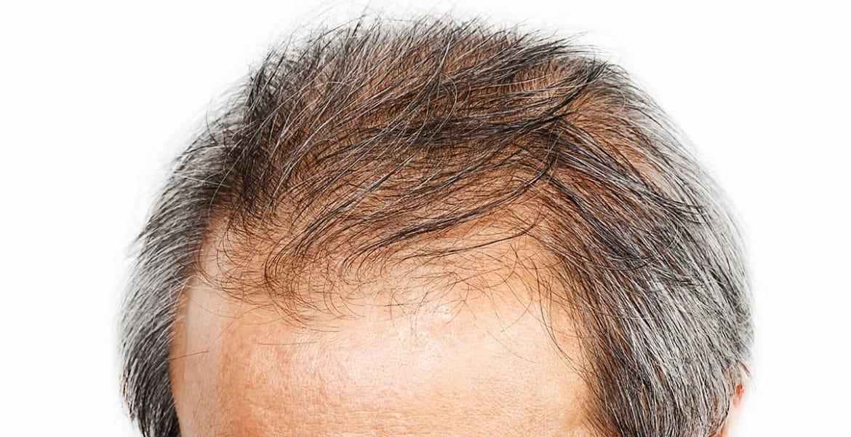 manque densité greffe de cheveux