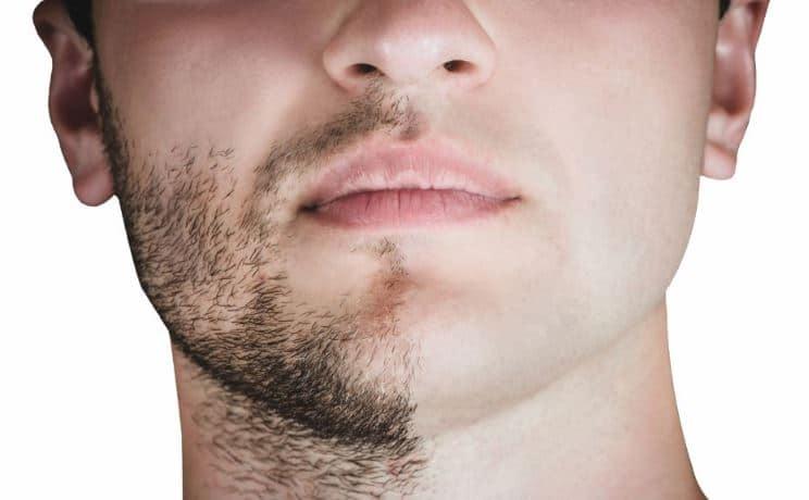 prix greffe de barbe